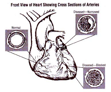 All about arteries, veins and artery health!