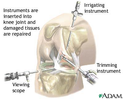 Courtesy Arthroscopic Surgery Surgical knee Viewing scope Irrigating; Trimming Instruments picture