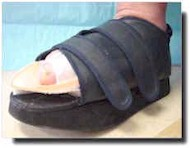 Charcot foot wounds ca be serious and require fast treatement