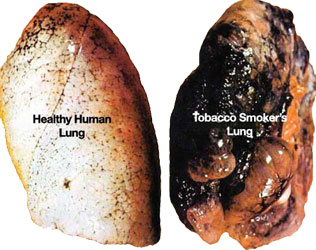 damaging and life threatening negative changes to lung condition attibutable to smoking