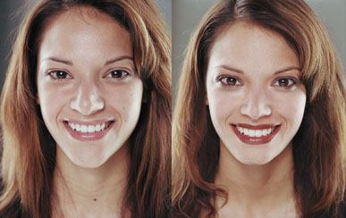 A girls before and after pictures - eye serum wrinkle cream treatment