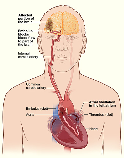 The illustration shows how a stroke can occur during atrial fibrillation. If a clot (thrombus) forms in the left atrium of the heart, a piece of it can dislodge and travel to an artery in the brain, blocking blood flow through the artery. The lack of blood flow to the portion of the brain fed by the artery causes a stroke.